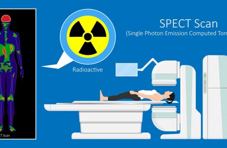 (Publicitate) SPECT/CT scanează cu precizie celulele canceroase și nu numai